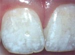 Лечение зубов и болезней полости рта
